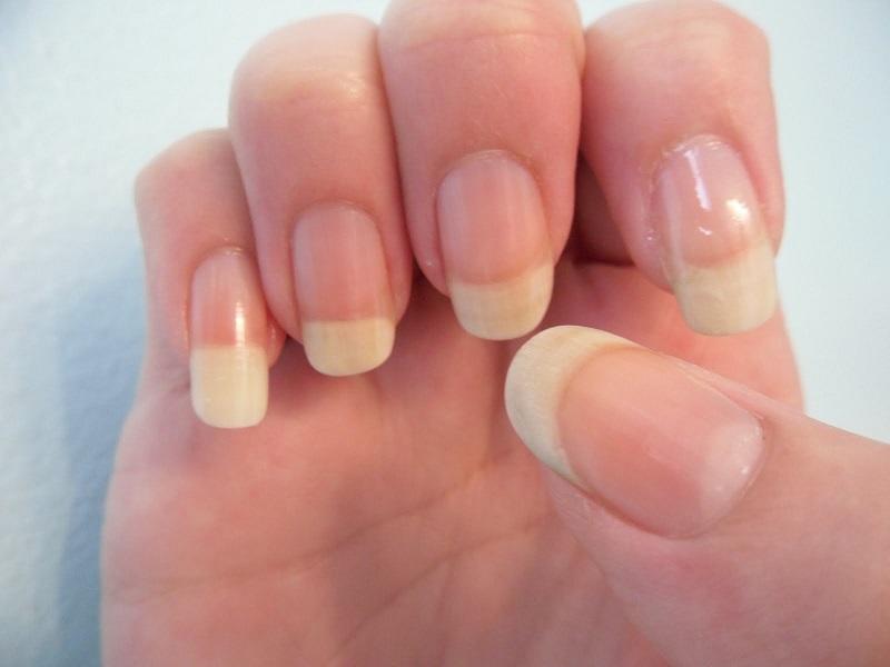 Грибок ногтей на руках признаки